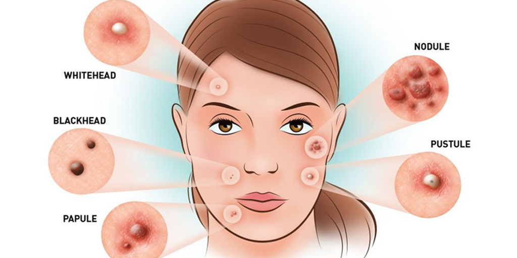 Health Science - 6 Serious Organs Problems The Rashes on Your Face Scream | Product Hunt