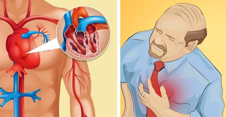 7 Silent Signs You May Have Clogged Arteries and Underlying Heart Disease | Product Hunt